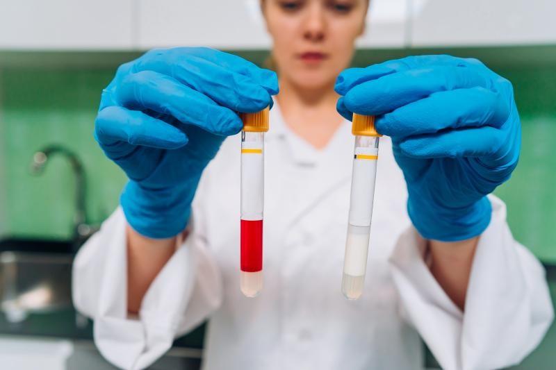 Laboratorio de analise de oleo isolante